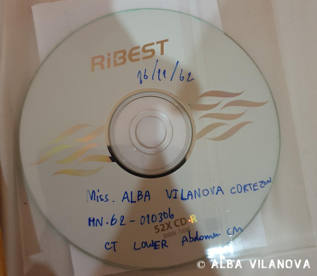 El CD de la tomografía (en Tailandia era el año 2562) - Tailandia - Viajar - Blog de Alba Vilanova